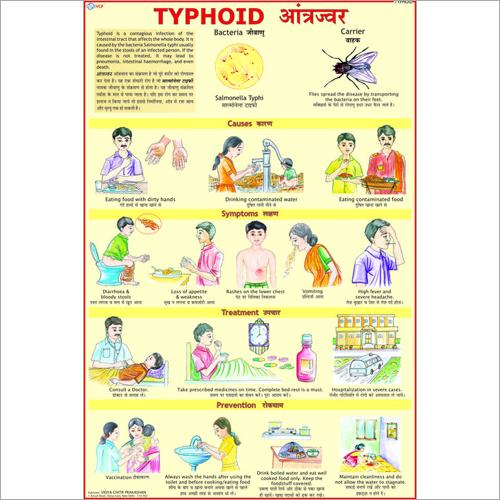 Typhoid Treatment Chart
