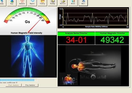 3rd Generation Health Analyzer