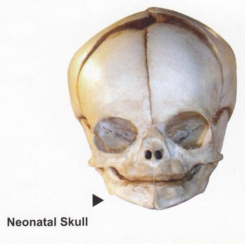 NEONATAL SKULL