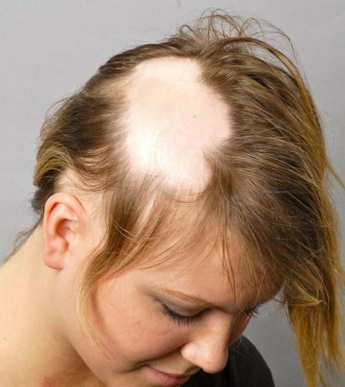 HUMAN HAIR HROWTH NATURAL WAY PROCESS