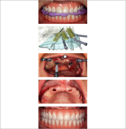All on 4 Nobel Guide Dental Implant Surgery