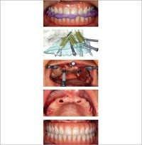 Nobel Guide Dental Implant Surgery