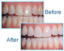 Laser Teeth Whitening in One Hour