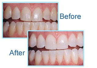 Laser Teeth Whitening in One Hour
