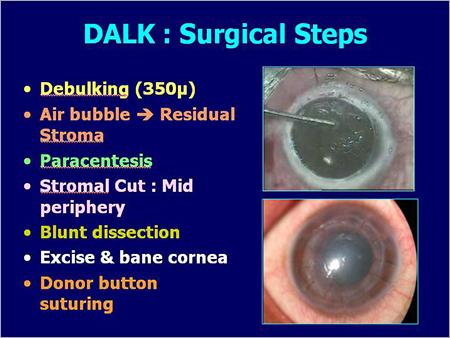 Dalk Surgical Steps
