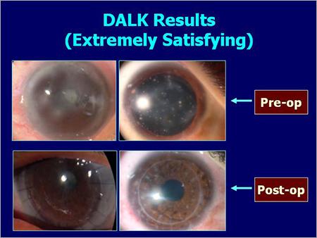 DALK Results