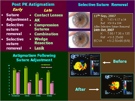 Bosten K Pro / Boston Keratoplasty