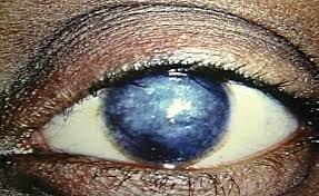 Corneal Blue -Cyan Crystal Tissue Adhesive