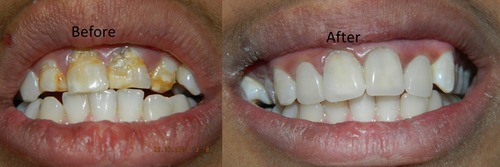 Dental Componeers Treatment