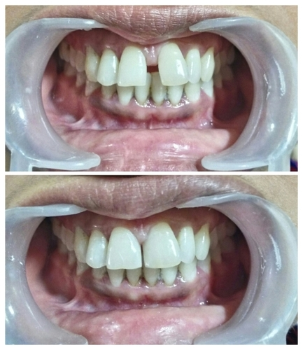Cosmetic Dentistry Before & After Pictures