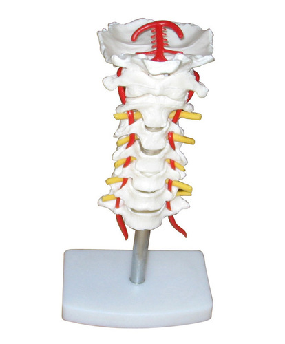 Cervical Vertebral Column with Neck Artery, Occipital,Herniated Disc and Nerves