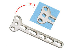 Bone Plate Screws