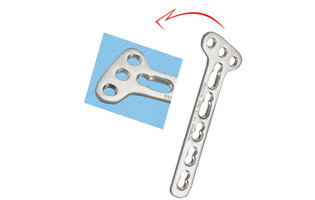 Oblique Angle Locking Screw