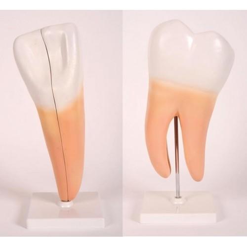 Expansion Modelof Human Teeth
