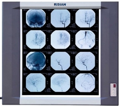 RISIAN Single Section Led X Ray Film Viewer