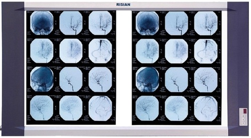 RISIAN Double Section LED X-Ray Film Viewer