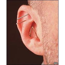 Acupuncture Ear Needle-Press Needle 100pc. .22x1.5
