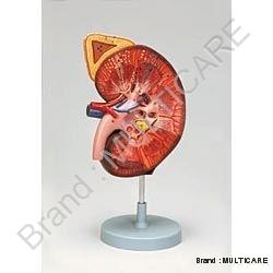Kidney Model