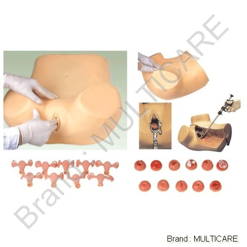 Gynecological Training Model