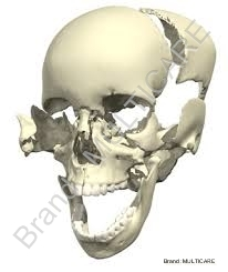 Disarticulated Skull