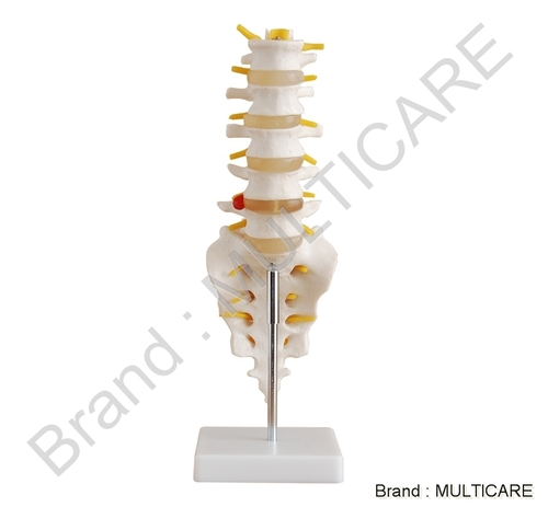 Lumbar Vertearae with Sacrum & Coccyx and Hearinated Disc Life Size