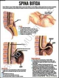 Spina Bifida Chart