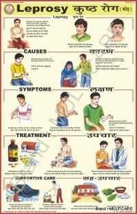 Leprosy Chart