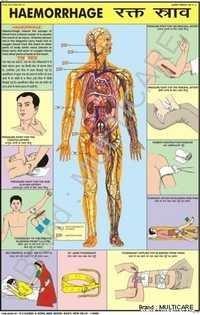 Haemmorhage Chart