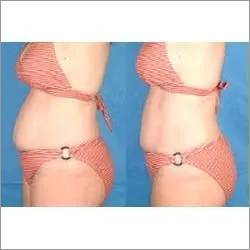 Body Slimming Devic