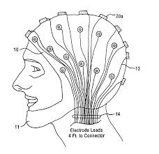 MRI Compatible Electrodes