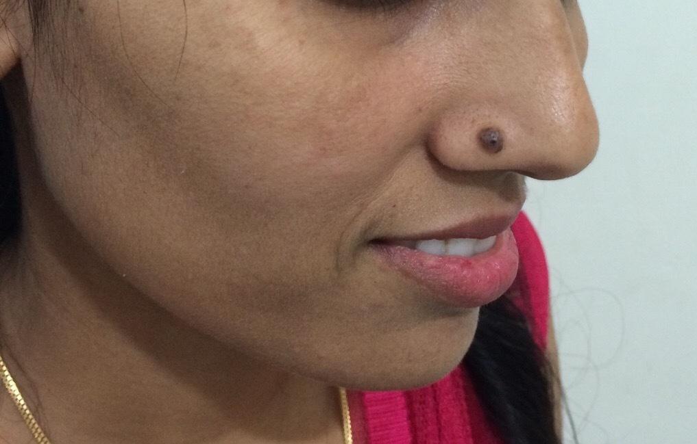 Mole Removal Treatment