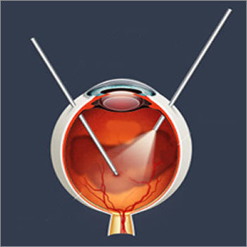 Vitrectomy Equipment