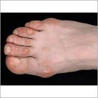 Foot Wear for Foot Corns