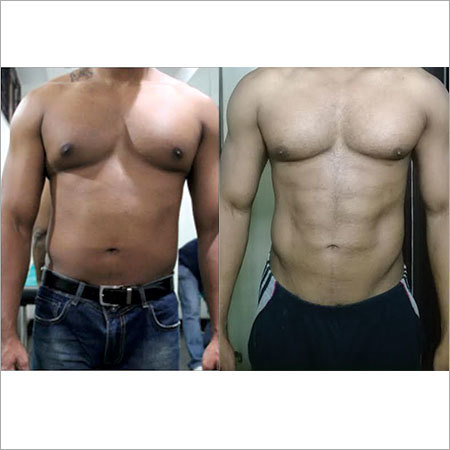 4D Body Contouring Surgery Services