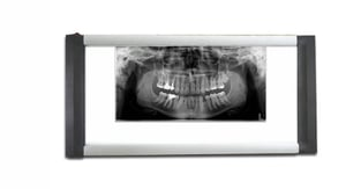 Dental X Ray Viewer