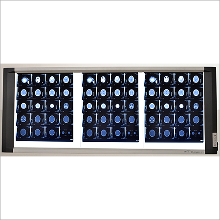Triple Screen Led X Ray Viewer