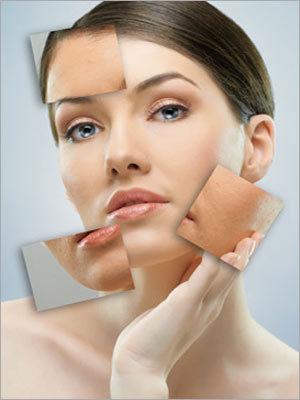 Collagen Remodeling Services