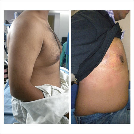 Gynecomastia Correction Surgery Services