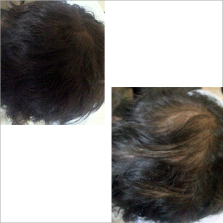 Hair Fibres
