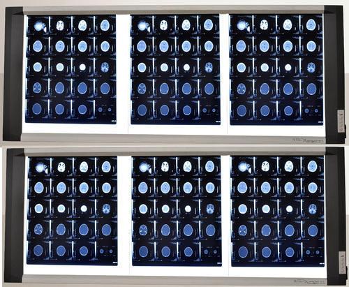 Six Screen LED X-Ray Viewer