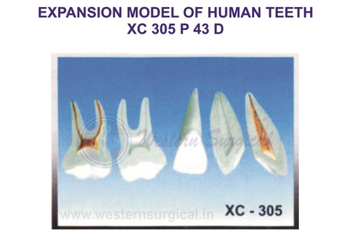 Expansion model of human teeth