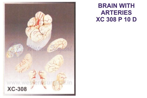 Brain With Arteries