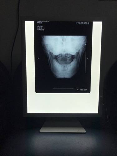 Durable and Effective LED X-ray Viewer by a Leading Exporter