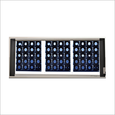 X Ray Film Viewer with Unparalleled Latest LED Technology