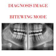 Dental 2D Imaging  Pax-I