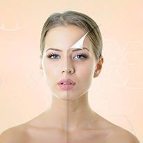 Collagen Remodeling Services