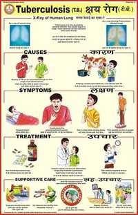 Tuberculosis Chart