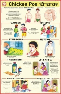 Chicken Pox Chart