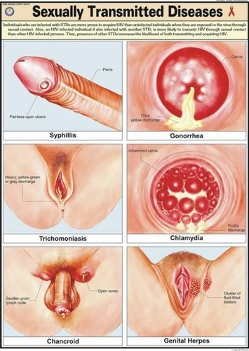Sexually Transmitted Diseases Chart