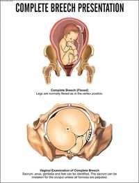 Complete Breech Presentation Chart